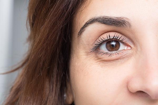 ماسك الموز لعلاج انتفاخات العيون بشكل سريع