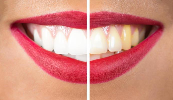 وصفة الملح والليمون للتخلص من اصفرار الأسنان.. حل سحري وسريع
